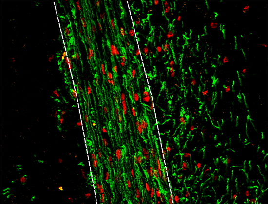 Myelin (green) production by transplanted human oligodendrocyte progenitors cells (red) is greatly improved following the genetic block of M3R expression. (Credit: Jesslie J. Polanco)