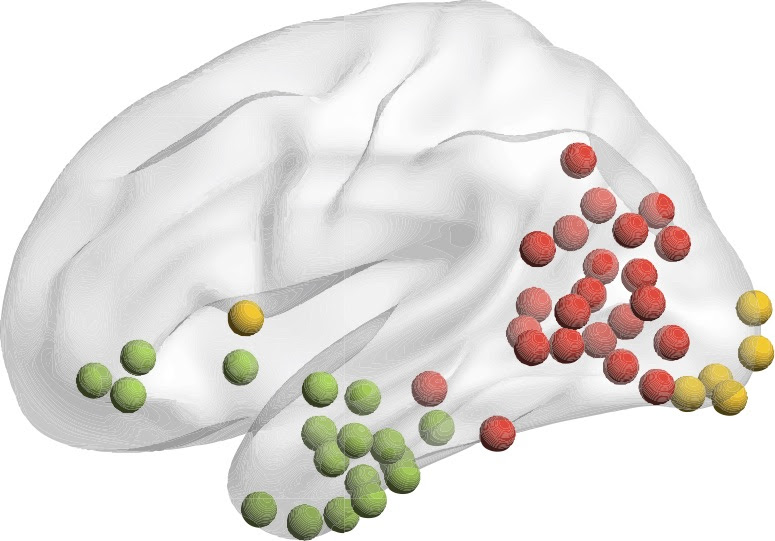Each collection of colored dots on this University at Buffalo researcher's new brain model represent different clusters of brain regions that studies of patients with stroke or brain disease suggest might lead to impaired knowledge, such as the inability to recognize a common object. (Image courtesy of the University at Buffalo)